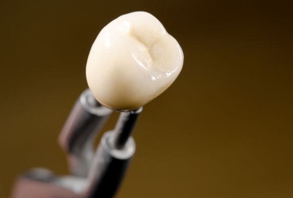 How Important Is Dental Crown Material Choice?