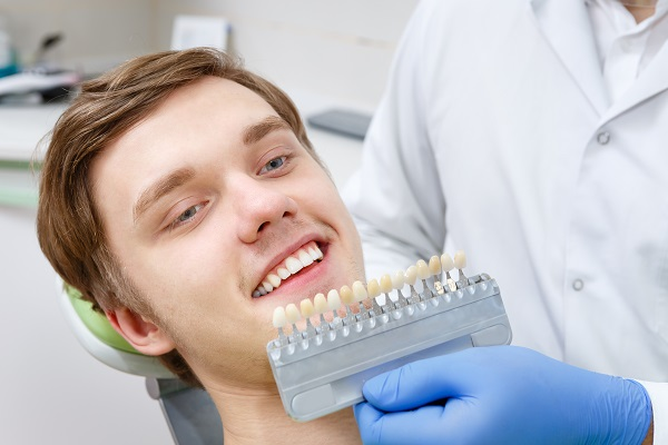 How Long Will Dental Veneers Last?
