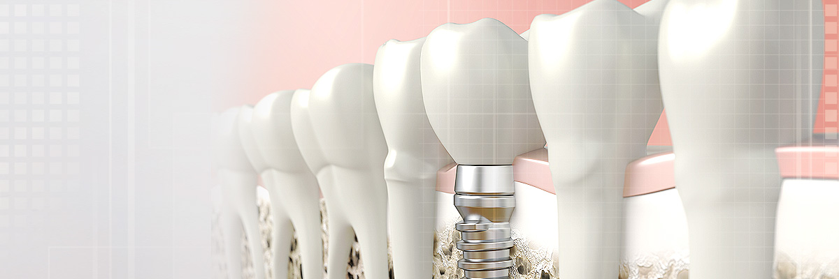 Plano Implant Dentist