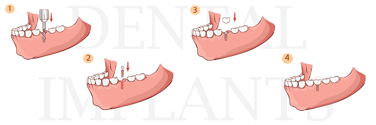 Plano The Difference Between Dental Implants and Mini Dental Implants