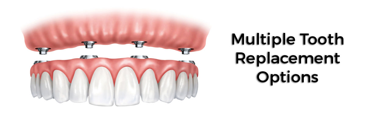 Plano Multiple Teeth Replacement Options