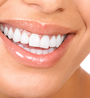 Teeth Whitening Services Plano, TX