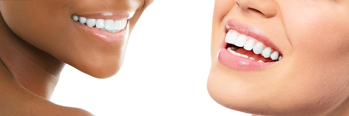 Plano Teeth Whitening